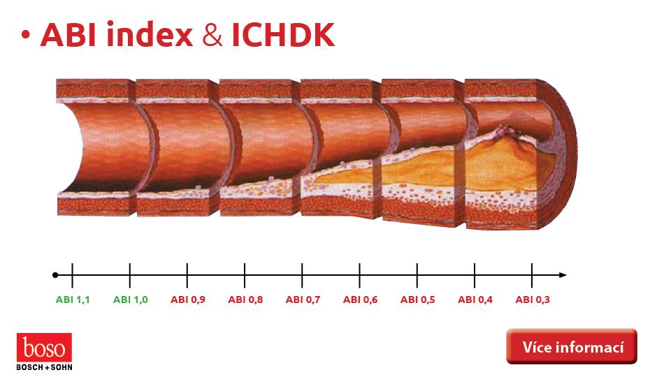 ABI index & ICHDK